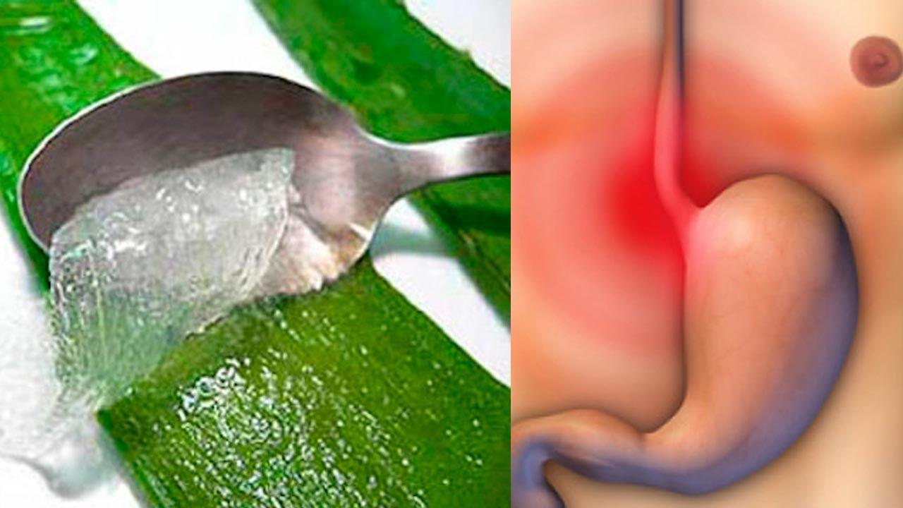 Que es la hernia hiatal y como se cura