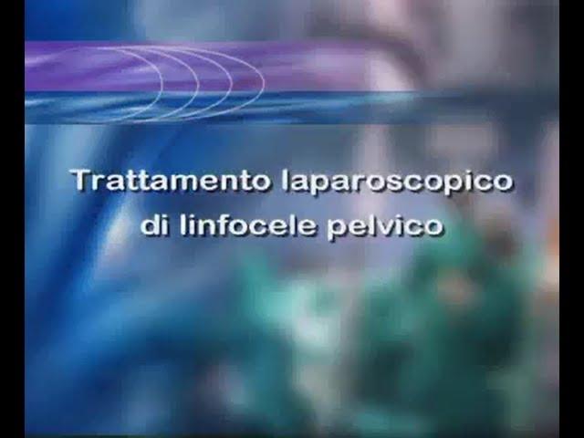 Laparoscopic Surgery - Trattamento laparoscopico di linfocele pelvico