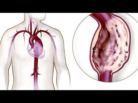 Harbor - UCLA Medical Center & Advances in Vascular Medicine Feature