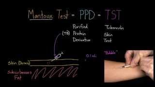 Mantoux Test (aka. PPD or TST)