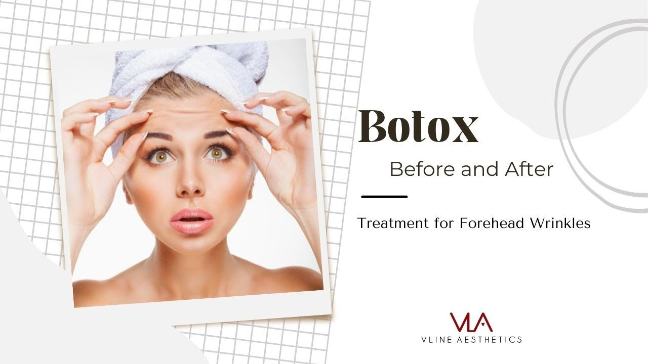 Botox Before And After Skin Perfect Brothers Medical Spa