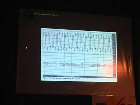 X UFO Forum - Moje badania w Wylatowie - Dr. Jan Szymanski