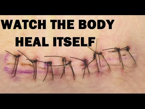 30 Days of Healing in 45 Seconds - Timelapse of the Body Healing a Wound