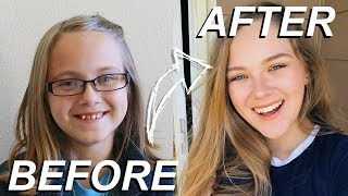 GETTING MY BRACES OFF AFTER 8 YEARS OF WAITING!