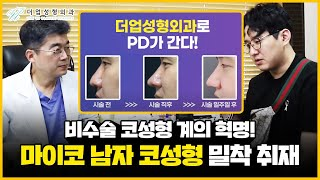 비수술코성형, 실로 하는 '마이코'! 남자 코 성형 시…