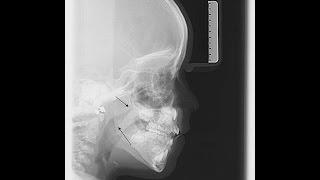 22. Deformaciones de la cara por respiración bucal