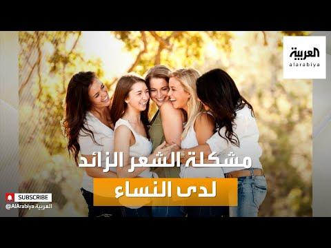 صباح العربية | أفضل الطرق للتعامل مع مشكلة الشعر الزائد لدى النساء