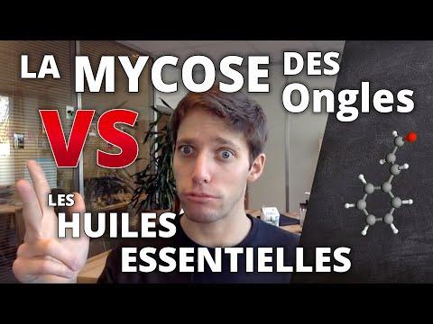 MYCOSE DES ONGLES - Traitement naturel aux huiles essentielles