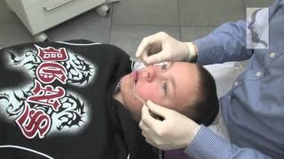 Orthodontiepraktijk Leeuwarden: De verschillende soorten beugels
