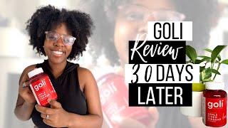 Goli Apple Cider Vinegar Gummies Review // 30 days Later