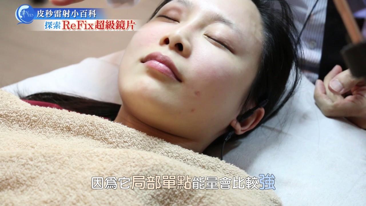 【醫師給問嗎】認識皮秒超級鏡片 - 皮膚專科陳振豐醫師 - YouTube