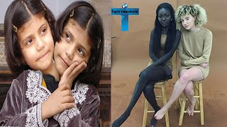 Top 10 Truly Unusual Twins Who Born Different You Have Never Seen In Your Life #4