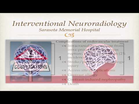 Endovascular Technologies in the Treatment of Cerebral Aneurysms by Daniel Case, MD