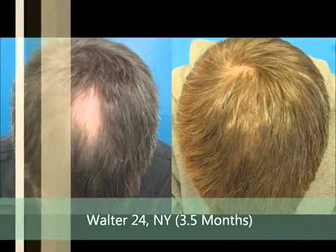Hair Loss Treatment For Men and Women FDA Approved  YouTube