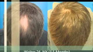 Hair Loss Treatment For Men and Women FDA  Approved