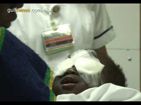 Mali baby undergoes life-changing surgery in Dubai