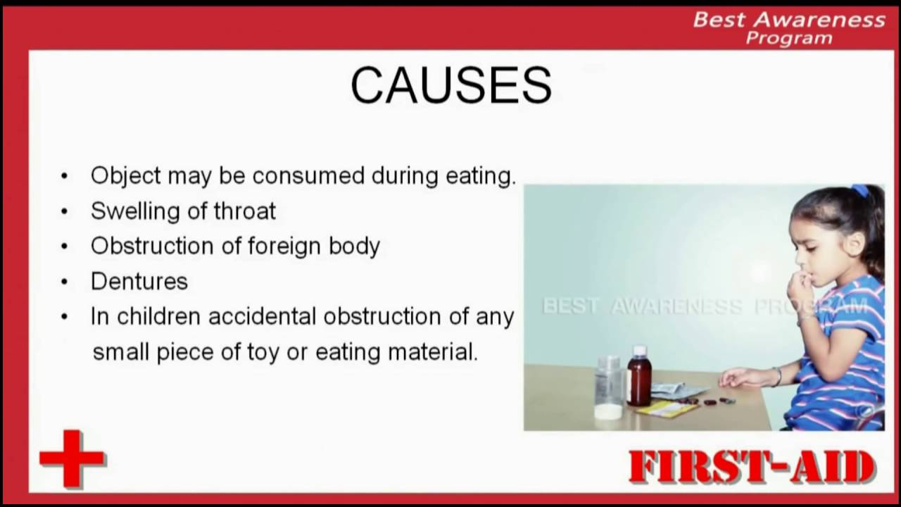 Reasons Of Choking  Causes Of Choking  Factors That Causes