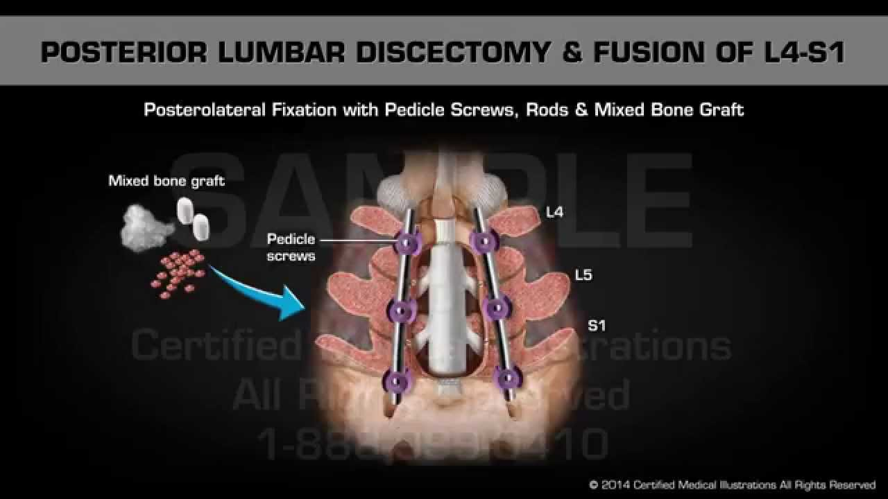 Posterior Lumbar Discectomy Fusion Of L4 S1 Youtube