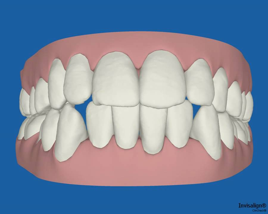 Invisalign Invisible Braces 3D animation - Teeth Move - YouTube