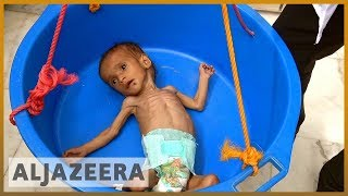 🇾🇪Tense calm prevails in Yemen