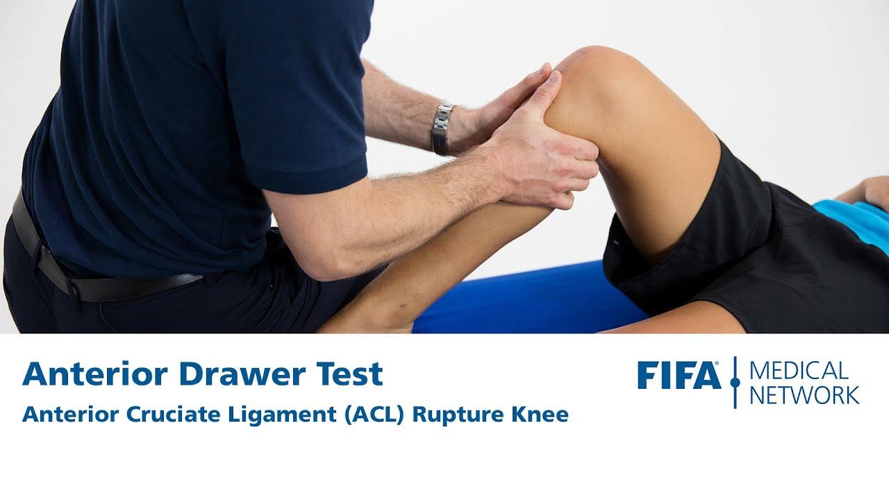 Download Anterior Drawer Test | Anterior Cruciate Ligament (ACL) Rupture