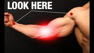How to Fix Elbow Pain (ONE SIMPLE EXERCISE!)