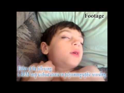 Rapid eye movement Sleep behaviour Disorder (REM)