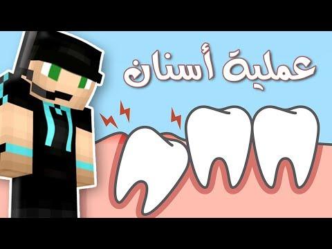 الدكتور فيصل ينجح في عملية أسنان !! 💉