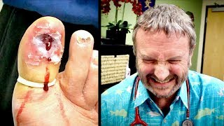 REACTING TO MY FRIENDS GRUESOME TOENAIL REMOVAL!   Dr. Paul