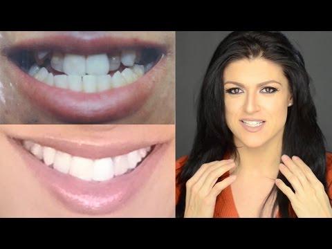 Invisalign Update 4 - Elastics, Propel & Teeth Whitening