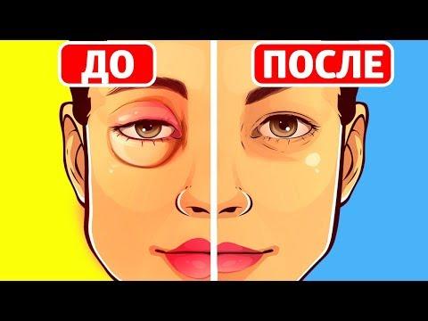 Как убрать опухлость на лице