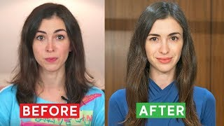 HOW I STOPPED MY HAIR LOSS: WHAT WORKED FOR ME