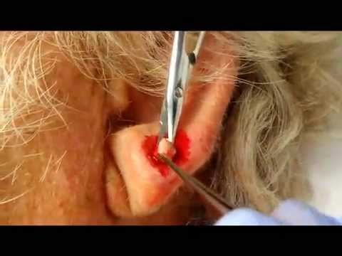 Earlobe Cyst Removal 8 14 2012 Youtube