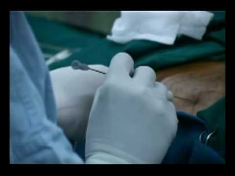 hqdefault - Video Of Sciatica Laser Surgery