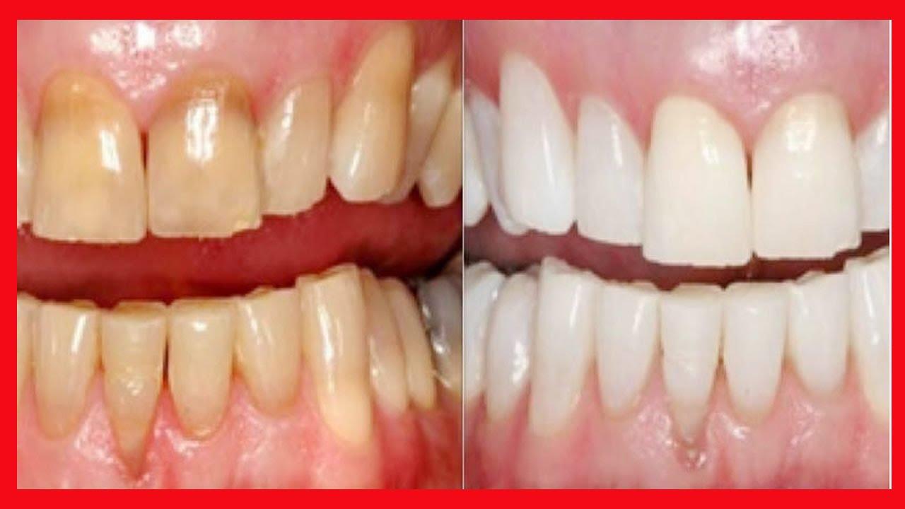 Clareamento Dental Caseiro Dentes Brancos Na Hora Super Facil