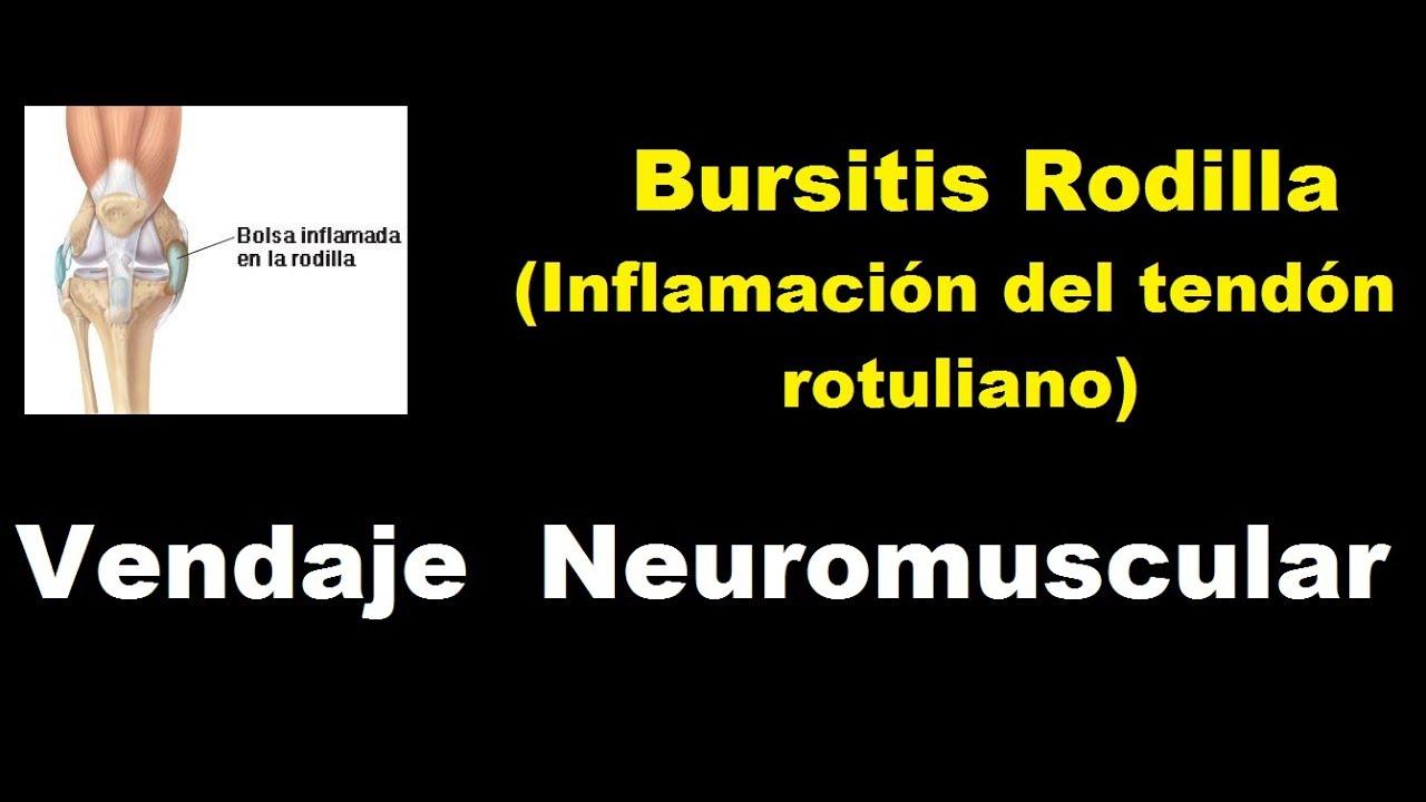 Bursitis rodilla (inflamación del tendón rotuliano) - vendaje neuromuscular
