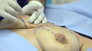 Thermi Breast Lift - A New Non-Surgical Approach
