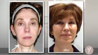 Y LIFT ® 2013 - Meryl | Instant, Non Surgical Facelift