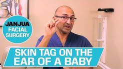hqdefault - Ear Tags Newborn Kidney