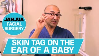 SKIN TAG ON THE EAR OF A BABY - 59 PLUS 1 - DR. TANVEER JANJUA