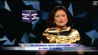 Encuentro de Opiniones: Golpeadas y Golpeadores  - Tv Azteca
