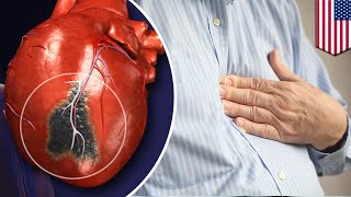 Silent heart attack  Study shows you can have a heart attack without realizing it   TomoNews
