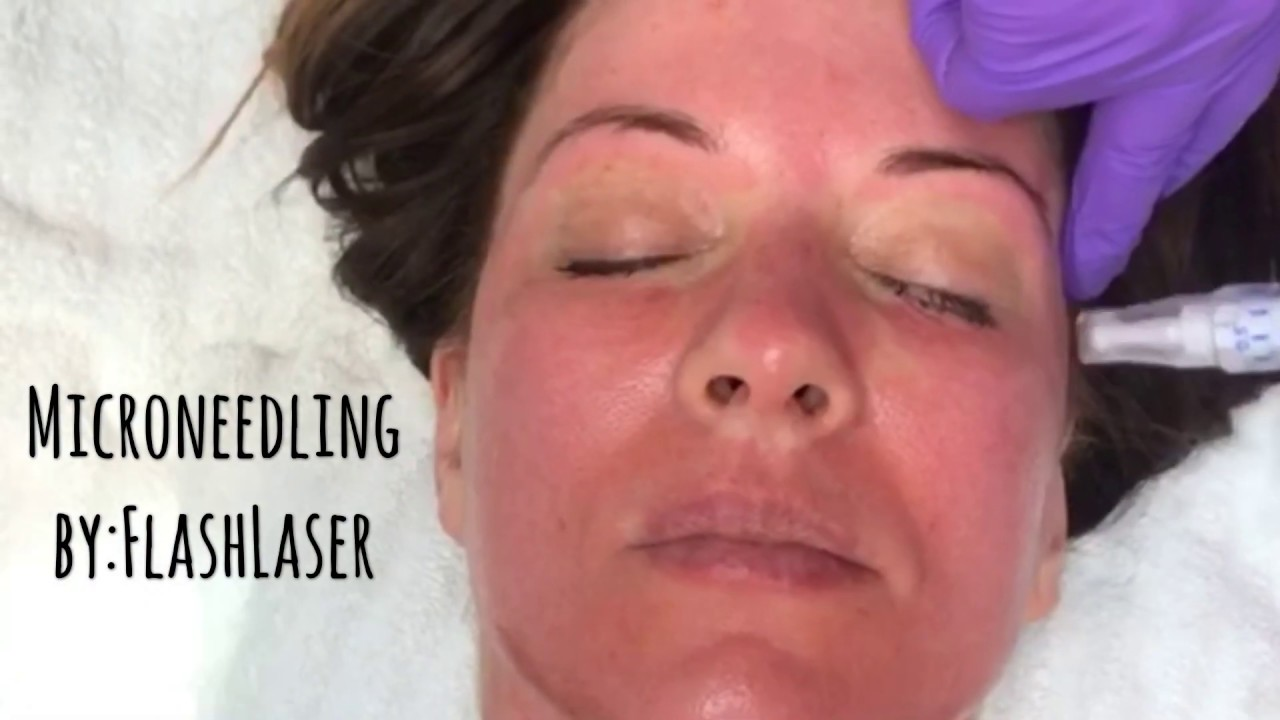 Skin Resurfacing | FlashLaser Aesthetics
