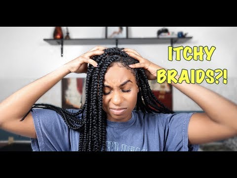 How To Relieve Itchy Scalp | Box Braids