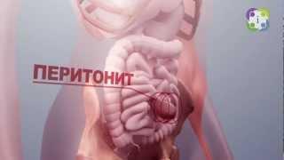 видео Распознаём и лечим грыжу пищевода