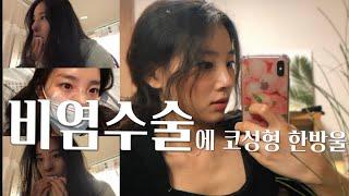 [비염+코성형 Vlog] 비중격만곡증 수술과 코끝성형의…