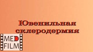 Ювенильная склеродермия © juvenile scleroderma