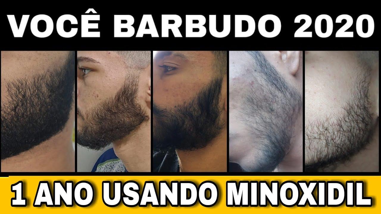 1 ANO USANDO MINOXIDIL - VOCÊ BARBUDO 2020 (vídeo final 2/2) #18