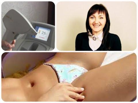 Лечение геморроя лазером, без операции