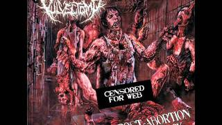 Vulvectomy - drowned in afterbirth